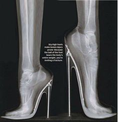 Extreme Heels: Podiatrist Warning (BRING IT ON!)