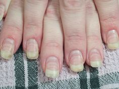 Salon Services Types Of Nails Nail Technician Us How To Do