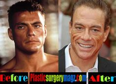 8 Plastic suregery procedures most requested by celebrities Male Celebrity Plastic Surgery Gone Wrong Bad Celebrity Plastic Surgery, Bad Plastic Surgeries, Plastic Surgery Gone Wrong, Plastic Surgery Photos, Plastic Surgery Procedures, Cosmetic Procedures, Famous Child Actors, Claude Van Damme, Under The Knife