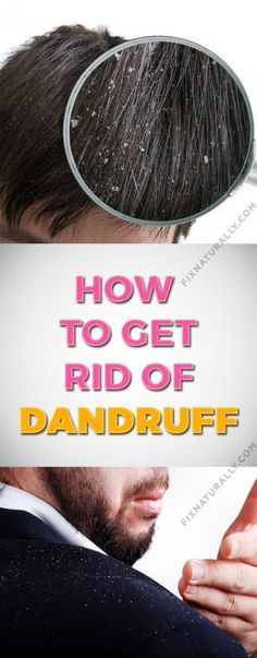 Are you ashamed of wearing a black dress? Try natural home remedies for dandruff. Using these remedies on a regular basis, you will get an effective result within 15 days. Heading: Apply natural home remedies for dandruff and shine with your hair. Home Remedies For Dandruff, Remedies For Tooth Ache, Natural Cold Remedies, Holistic Remedies, Acne Remedies, How To Reduce Dandruff, Getting Rid Of Dandruff, Lose Weight Naturally, Natural Remedies