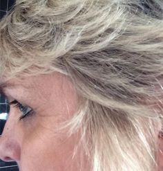 kleeneze pro youth serum before picture belinda clarke E Online, Serum, Youth, Spa, Hair Beauty, Lifestyle, Shopping, Young Man