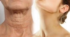 Simple Ways On How To Make Your Neck Look Younger This Is Just Amazing! Unfortunately, one of the first signs of aging is sagging skin on the neck. Cosmetic Treatments, Sagging Skin, Look Younger, Younger Skin, Tips Belleza, Just Amazing, Amazing People, Simple Way, Skin Care Tips