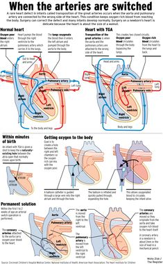 Transposition of the Great Arteries. This is the best explanation I have seen