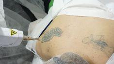 In curand, cursul #ACREDITAT de indepartarea tatuajelor va fi sustinut si la Start Academy sucursala din #CLUJ!!!  0770815659 0729388880 0314326031 office@cursuri-estetica.ro www.cursuri-estetica.ro Laser Tattoo, Tattoo Removal, Body Tattoos, How To Remove, Training, Tattoo, Work Outs, Excercise, Onderwijs