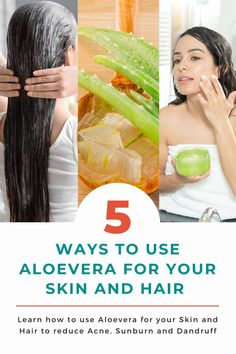 5 ways to use Aloe vera for your Skin and Hair to reduce Acne, Hair loss and Dandruff