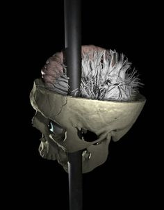 Scientists digitally map damaged connections in Phineas Gage's brain