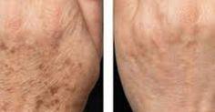Age Spot Corrector - Age Spot Cream - Age Spot Lotion - Dark Spot Cream - Liver Spot Cream - Green Tea - Skin Lightener - No Bleach Formula Skin Care Regimen, Skin Care Tips, Age Spot Cream, Age Spots On Face, Lotion, Remover Manchas, Brown Spots, Dark Spots, Ingrown Hair
