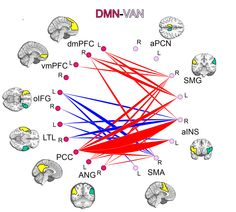A peek inside the brains of more than 750 children and teens reveals a key difference in brain architecture between those with attention deficit hyperactivity disorder and those without.
