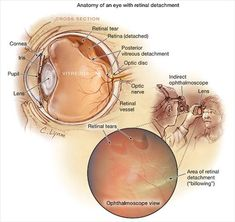 Retinal Detachment: reattach it quickly. If remove fluid: promote reattachment… Vitrectomy Surgery, Laser Eye Surgery, Opthalmic Technician, Posterior Vitreous Detachment, Med Surg Nursing, Eye Study, Eye Anatomy, Medical Billing And Coding, Eye Sight Improvement