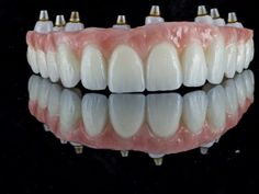 Spear Releases Full Arch Zirconia Fixed Prosthesis Study Club Module Dentistry, Dental, Pepper, Arch, Core, Articles, Health, Black, Beautiful Smile