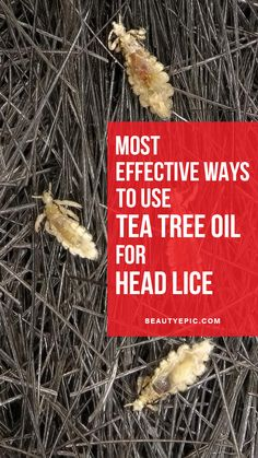 Most Effective Ways to Use Tea Tree Oil for Head Lice
