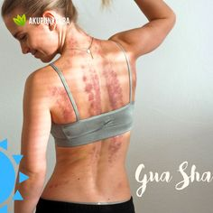 Terapia Gua Sha I Gabinet Akupunktury prof Enji Gua Sha, Bra, Sports, Therapy, Hs Sports, Sport, Exercise, Bra Tops