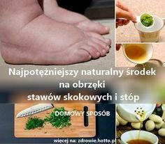 Najpotężniejszy naturalny środek na obrzęki stawów kolan, kostek i stóp. Przepis