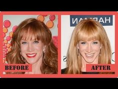 Kathy Griffin Plastic Surgery - CelebrityPost.net #KathyGriffin