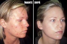 Skin Care - Accutane Acne Before and After The best acne treatment theacnecode. - Makeup Tips Scar Treatment, Best Acne Treatment, Acne Treatments, Chemisches Peeling, Acne Scar Removal, Les Rides, Remove Acne, Natural Remedies, Buttons