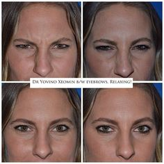 Before and after Xeomin. It's a new Botox competitor. Very nice and natural relaxation of her frown lines within hours. Anti Aging Cream, Anti Aging Skin Care, Beauty Hacks Skincare, Beauty Products, Beauty Secrets, Skin Cream, Sensitive Skin, Nice, Natural