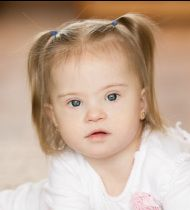 Biomedical treatment of persons with Down Syndrome Down Syndrome Treatment, Thyroid, Children, Autism, Health, Advice, Portraits, Google Search, Life