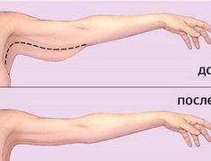 Как убрать жир с рук: 3 действенных способа. Хочу изящные изгибы!