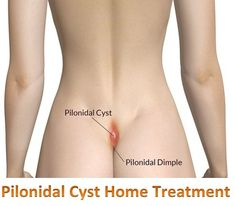 """Pilonidal Cyst Home Treatment - Pilonidal (say """"py-luh-NY-dul"""") disease is a chronic skin infection in the crease between the buttocks. People with this . A pilonidal cyst may look like a small dimple (called a """"pit"""" or """"sinus""""). Ingrown Hair Cyst, Ingrown Hair Remedies, Sinus Remedies, Health Remedies, Holistic Remedies, Herbal Remedies, Home Remedies For Hair, Natural Home Remedies, Natural Healing"""