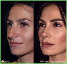 Rhinoplasty Tip: Closed Rhinoplasty. Before and after rhinoplasty 1 year after surgery DR .Rhinoplasty Tip: Closed Rhinoplasty. Before and after rhinoplasty 1 year after surgery Dr ., Closed rhinoplasty surgery Tip yearlog inTamara Williams Nose Plastic Surgery, Plastic Surgery Gone Wrong, Nose Surgery, After Surgery, Plastic Surgery Before After, Meghan Markle Plastic Surgery, Bulbous Nose, Rhinoplasty Before And After, Rhinoplasty Surgery