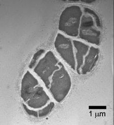 Microbe's innovation brought doom to Earth | #GeologyPage