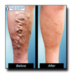 Varicose veins only worsen with time, if not treated...but it doesn't matter how bad they get...our vascular surgeons can remove them using laser technology that will leave your legs looking young and healthy again!  https://www.veinandvascularofspringhill.com/varicose-veins-before-and-after-pictures/  #SpringHillVaricoseVeins  #VaricoseVeinRemovalBeforeAndAfter #BeforeAndAfterLaserVeinTreatment