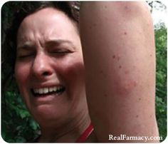 Mosquitoes: why they target some people more than others, natural defenses against them, & tips on how to sooth a sting. LOTS of info here!