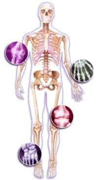 Tratamientos naturales para la artrosis - consejos: http://www.suplments.com/consejos/tratamientos-naturales-para-la-artrosis/