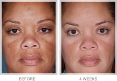 Obagi Nu-Derm® Before & After*  -Available at McDonald Murrmann Skin and Laser 7205 Wold River Blvd, Suite 155 Germantown, TN 38138 (901) 322-7020