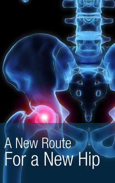 Anterior hip replacement - What you need to know about the newest hip replacement options... | http://Scrubbing.in