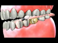 Everything You Wanted to Know about Dental Bridges | Joshua Hong DDS | Dentagama