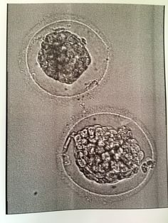 IVF: Frozen Embryo Transfer Experience and Process