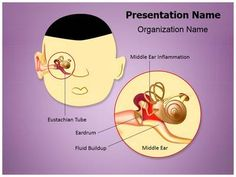 Otitis Media Eustachian Powerpoint Template is one of the best PowerPoint templates by EditableTemplates.com. #EditableTemplates #PowerPoint #Eustachian#Auditory #Acoustic #Sensory #Otitis #Bacteria #Inflammation