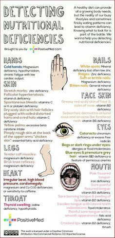 Detecting Nutritional Deficiencies / Health / Nutrition / Healthy Lifestyle