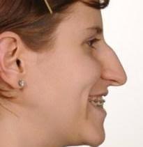 Hook Nose – Meaning, Jewish Hooked Nose, Hook Nose Rhinoplasty | Nose