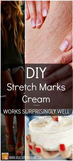 10 DIY beauty products everyone can make Here is a a recipe for a homemade stretch mark cream that successfully fights the stretch marks as well as cellulite. Stretch Mark Cream, Stretch Marks, Beauty Secrets, Beauty Hacks, Beauty Products, Diy Beauty Tricks, Skin Products, Beauty Care, Beauty Skin