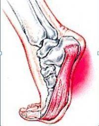 obrázek Plantar Fasciitis Treatment, Self Treatment, Foot Pain, Deep Tissue, Back Pain, Self Help, Stretching, Gate, Massage