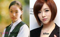 The sensational changes behind Kpop T-ara Plastic Surgery - PlastyTalk South Korean Girls, Korean Girl Groups, Plastic Surgery, Korean Singer, Kpop