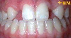 Răng thưa chữa như thế nào để đẹp mà hiệu quả nhất?