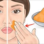 How to remove dark spots on the face and hands instantly, overnight? - Woman To Power Coconut Oil Facial, Coconut Oil Hair Mask, Coconut Oil For Skin, Ugly Hair, Hair Falling Out, Hair Starting, Unwanted Hair, Dark Spots, Facial Hair
