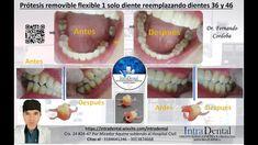 Protesis flexible individual dientes 36 y 46 Dental, Desserts, Tailgate Desserts, Deserts, Postres, Dessert, Teeth, Dentist Clinic, Tooth