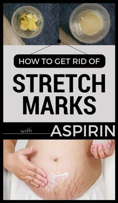 How To Get Rid Of Stretch Marks With Aspirin
