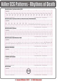 Interpret EKGs Strips Like a Boss! (ekg interpretation for
