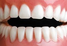 Zbavte se zubního kamene doma - Strana 2 z 2 - Příroda je lék Perfect Teeth, Health Advice, Health Care, Organic Beauty, Natural Health, Health And Beauty, Diy And Crafts, Beauty Hacks, Beauty Tips