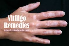 For the treatment of Vitiligo: A Pilot Study. Because of these beliefs and taboos patients with Vitiligo desperately try to get rid themselves of Holistic Remedies, Natural Health Remedies, Natural Cures, Alternative Therapies, Alternative Health, Natural Treatments, Skin Treatments, Skin Clinic, Natural Remedies