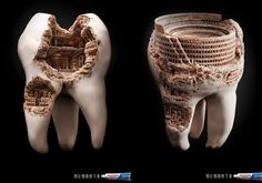 "Fake - These are ""Not"" real teeth... - They were CGI creations and used as a toothpaste Ad Campaign. Usually the bottom is cropped out of the image... Linked to site."