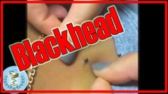 Blackhead squeeze (blackhead removal at home) - All pimples Channel