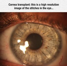 Amazing Eye Surgery Stitches