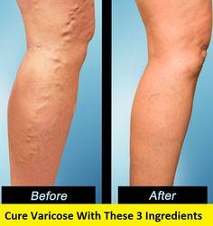varice-simptome-cauze-preventie-tratament