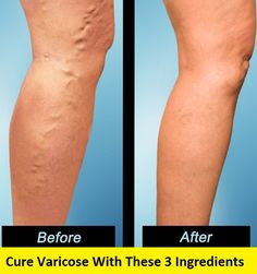 FINALLY A DIY VARICOSE VEINS CURE – HealthyFitHouse